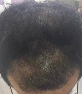 40代男性B 1か月間の施術後