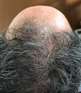 50代男性A 1か月間の施術後