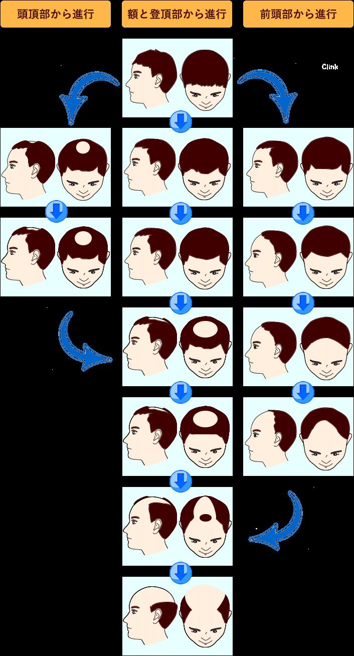 男性頭皮レベルのパターン