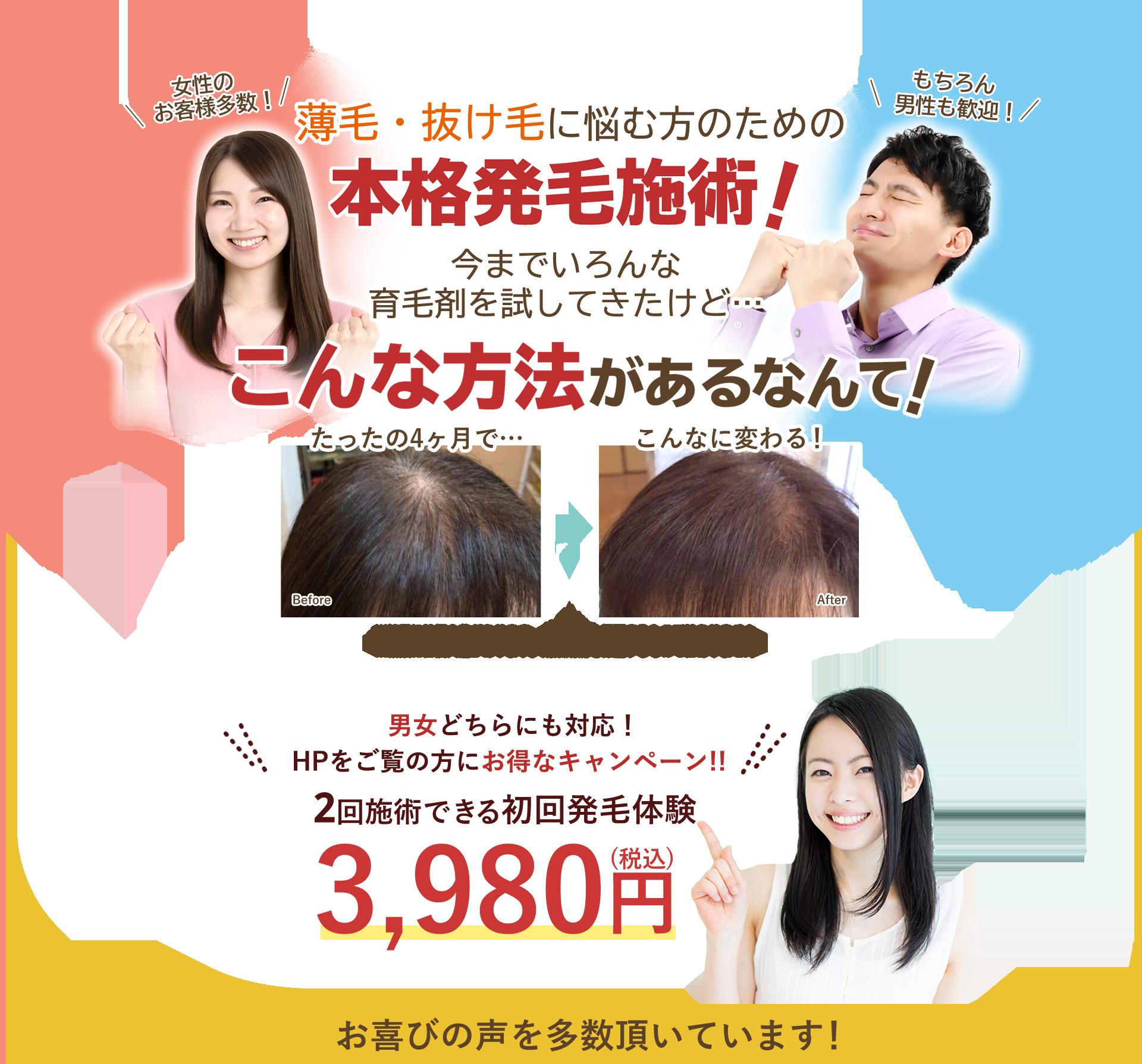 抜け毛・薄毛に悩む方のための「幹細胞培養液」を使用した本格施術